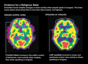 brain scans with one showing someone speaking in tongues